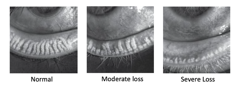 Images depicting the progression of meibomian gland dysfunction